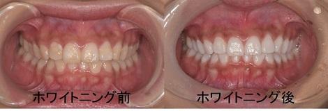 東灘区 歯医者 まっしろになる ホワイトニング・CTインプラント