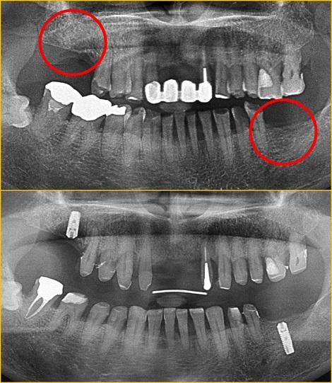 インプラント 小児歯科 子供歯医者