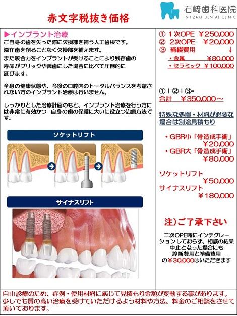 東灘区 歯医者 痛くない青木  インプラント専門
